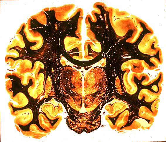 localisation du cortex