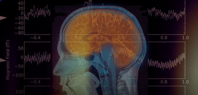 Landmark concussion study